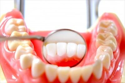 歯の裏側を鏡で確認