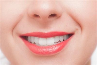 ホワイトニングを行った綺麗な歯